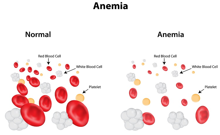 How Your Doctor can treat you during Iron Deficiency Anemia