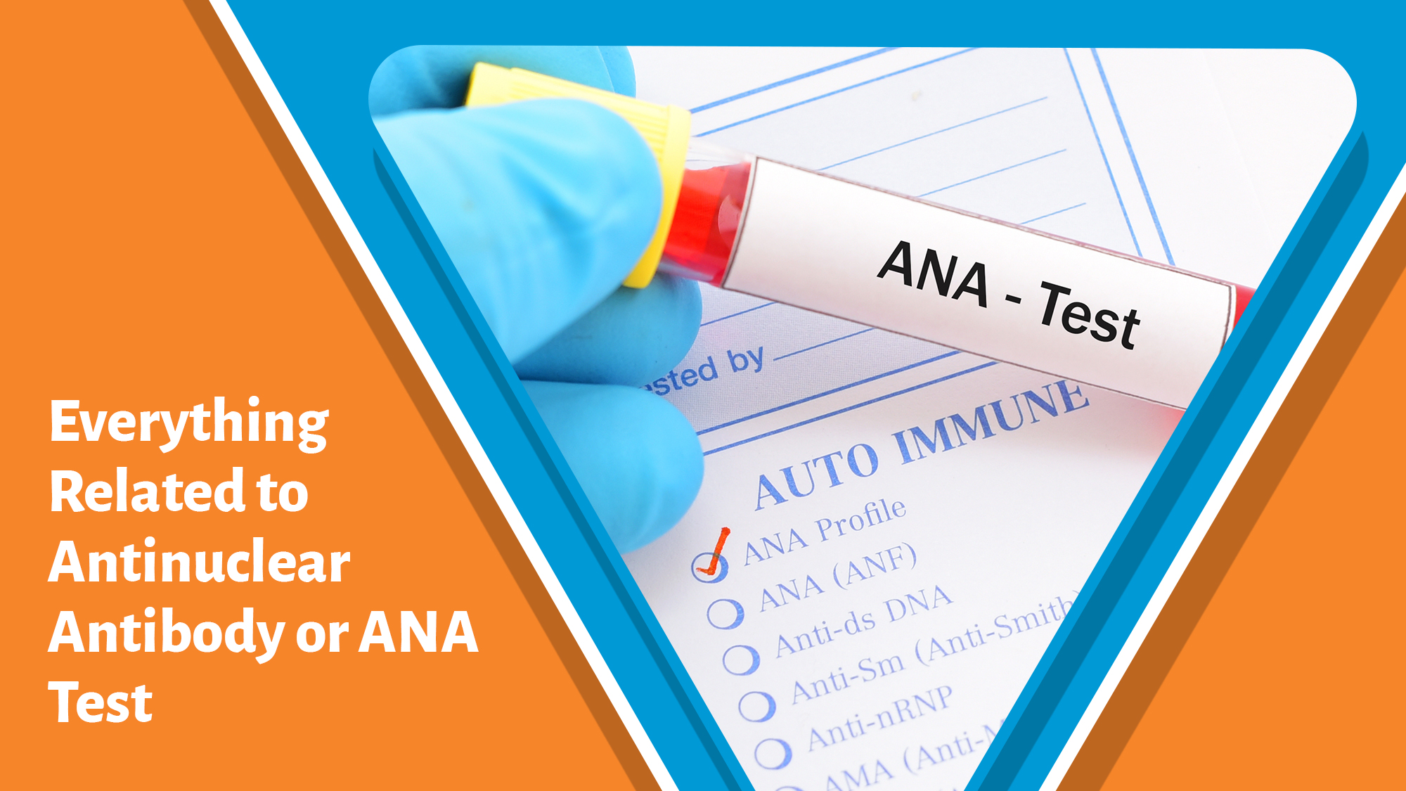 Everything Related to Antinuclear Antibody or ANA Test