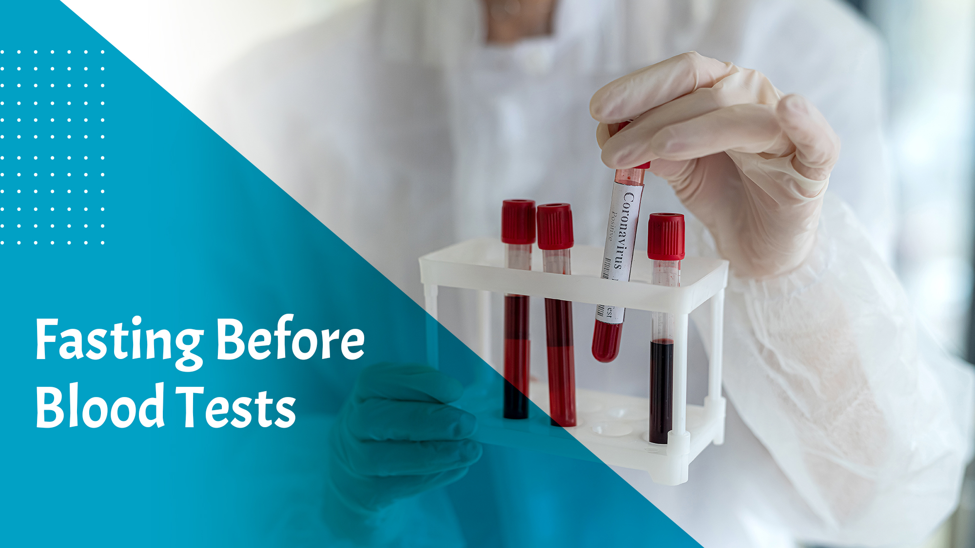Fasting Before Blood Tests
